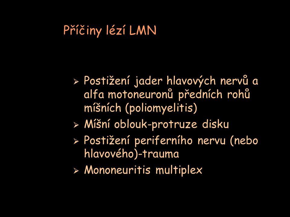 Příčiny lézí LMN  Postižení jader hlavových nervů a alfa motoneuronů předních rohů míšních (poliomyelitis)  Míšní oblouk-protruze disku  Postižení