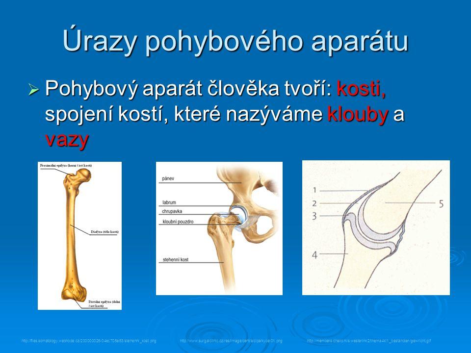 Úrazy pohybového aparátu  Pohybový aparát člověka tvoří: kosti, spojení kostí, které nazýváme klouby a vazy http://members.chello.nl/s.westerink2/thema4kl1_bestanden/gewricht.gifhttp://www.surgalclinic.cz/res/image/centra/clpa/kycel01.pnghttp://files.somatology.webnode.cz/200000026-04ec705e63/stehenni_kost.png