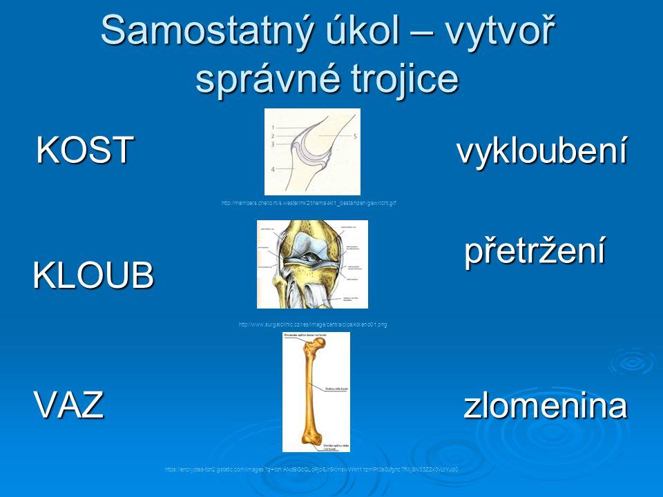 Zlomenina  Zlomeniny se týkají ……………  Bezpečnost: pády, nárazy, srážky s jinými předměty  Zlomeniny vznikají nadměrným zatížením postižených kostí  Navštívit vždy lékaře  Nejčastější zlomeniny: dlouhé kosti ……………………………..