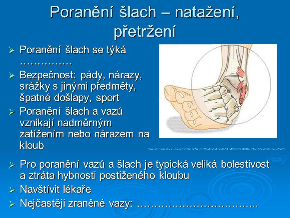 zdroje 1.http://files.somatology.webnode.cz/200000026-04ec705e63/stehenni_kost.png 2.