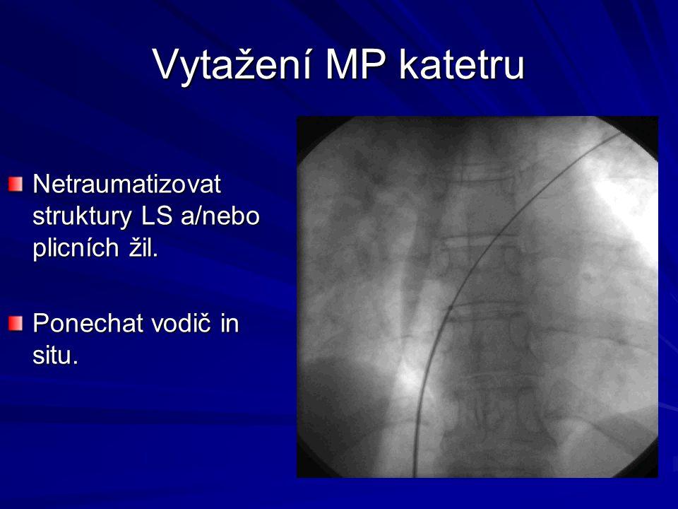 Vytažení MP katetru Netraumatizovat struktury LS a/nebo plicních žil. Ponechat vodič in situ.