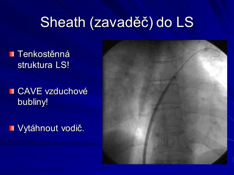Sheath (zavaděč) do LS Tenkostěnná struktura LS! CAVE vzduchové bubliny! Vytáhnout vodič.