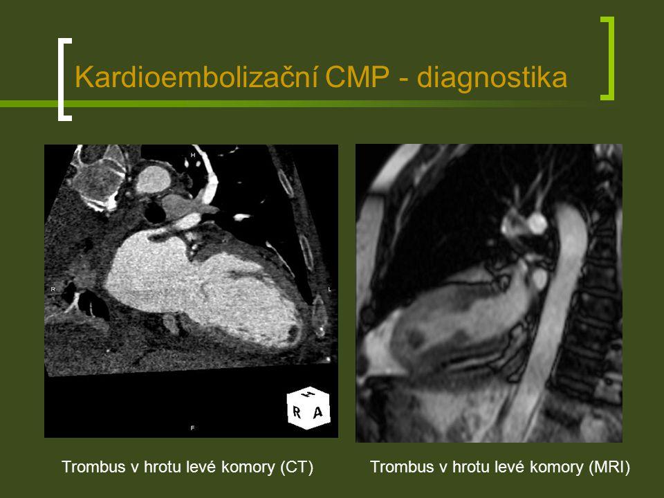 Fibrilace síní Nejčastější příčina kardioembolické CMP Epidemiologie - nejčastější porucha srdečního rytmu, její prevalence vzrůstá s věkem (0,1% u mladších 55 let, 9,0% u osob starších 80 let) a také se mírně zvyšuje (dříve 0,45% a dnes 0,95%) Patofyziologie - vzniká z ektopické aktivity jednoho nebo více fokusů v přítomnosti jednoho nebo více re-entry okruhů Klinický obraz – velmi různorodý (palpitace, dušnost, …) až po asymptomatické pacienty