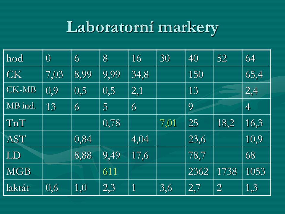 Laboratorní markery hod0681630405264 CK7,038,999,9934,815065,4 CK-MB0,90,50,52,1132,4 MB ind. 1365694 TnT0,787,012518,216,3 AST0,844,0423,610,9 LD8,88