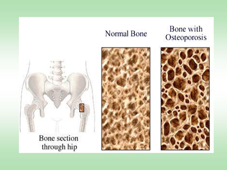 -17ß estery - nandrolon, nanndrolon dekonát §vitamín K §hořčík §růstový hormon - zvýšení osteoblastické aktivity §promethazin