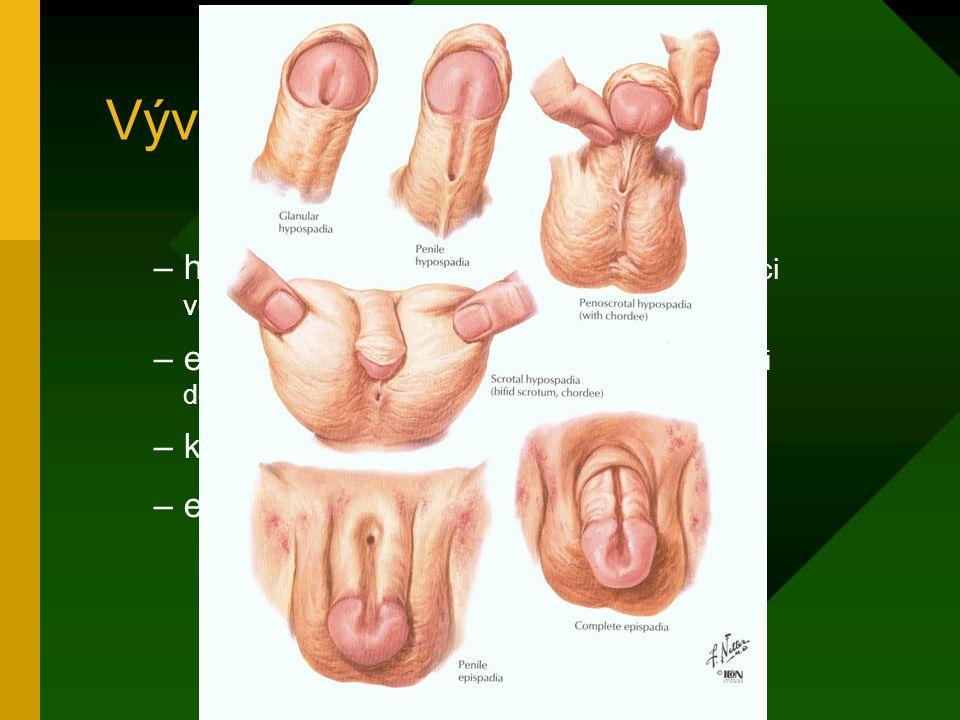 Vývojové poruchy u muže –hypospadie (1:300) - otvor v močové trubici ventrálně –epispadie (1:30 000) - otvor v močové trubici dorzálně –kryptorchismus