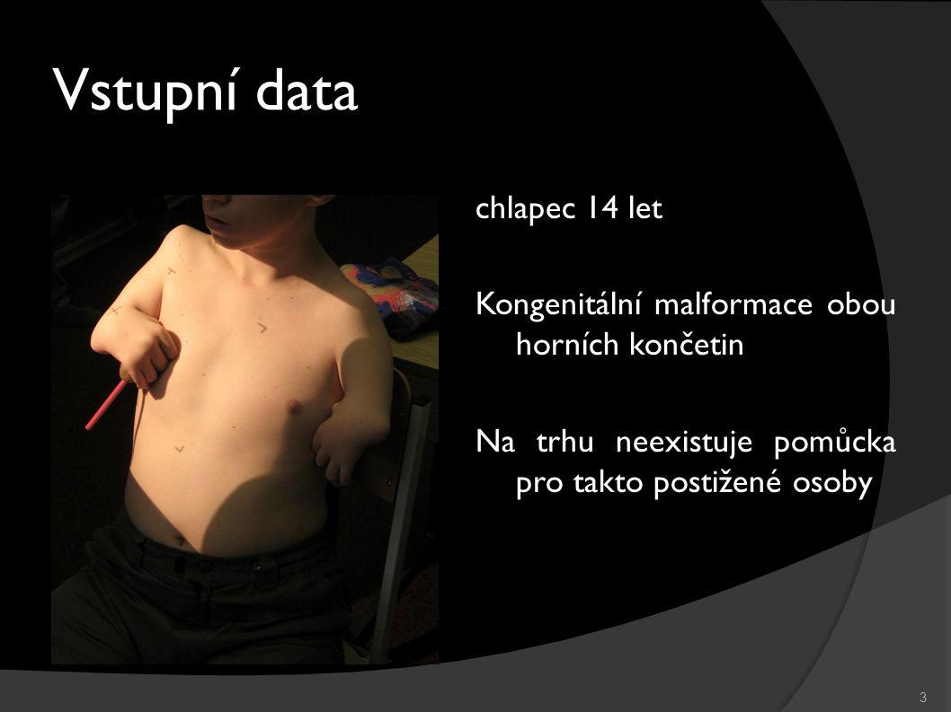 Vstupní data 3 chlapec 14 let Kongenitální malformace obou horních končetin Na trhu neexistuje pomůcka pro takto postižené osoby