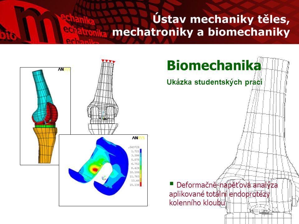 Biomechanika Ukázka studentských prací  Deformačně-napěťová analýza aplikované totální endoprotézy kolenního kloubu