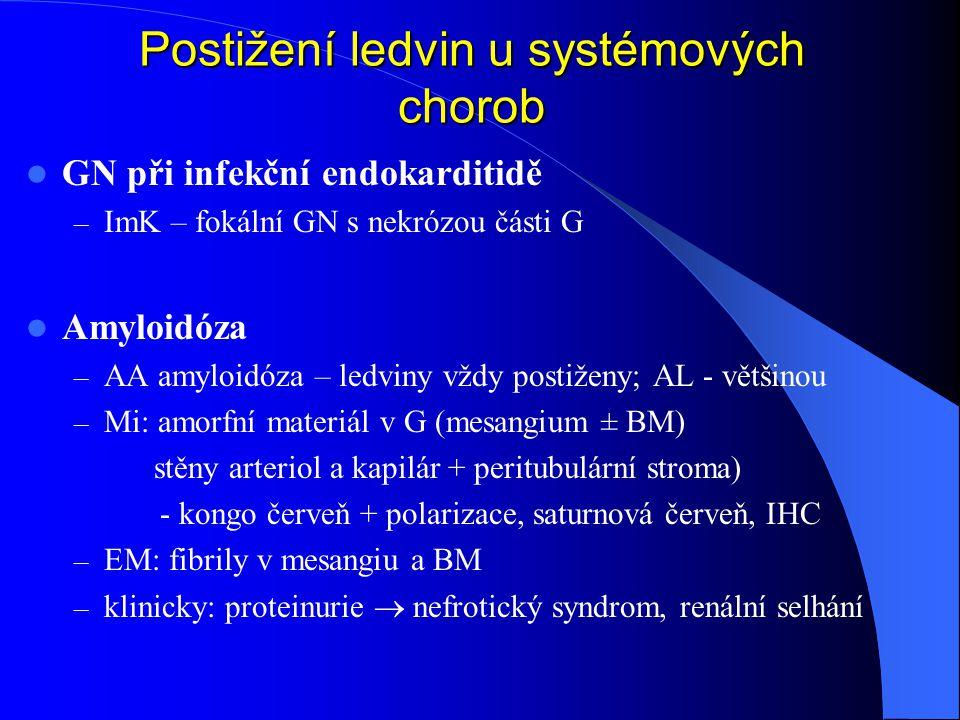 GN při infekční endokarditidě – ImK – fokální GN s nekrózou části G Amyloidóza – AA amyloidóza – ledviny vždy postiženy; AL - většinou – Mi: amorfní materiál v G (mesangium ± BM) stěny arteriol a kapilár + peritubulární stroma) - kongo červeň + polarizace, saturnová červeň, IHC – EM: fibrily v mesangiu a BM – klinicky: proteinurie  nefrotický syndrom, renální selhání Postižení ledvin u systémových chorob