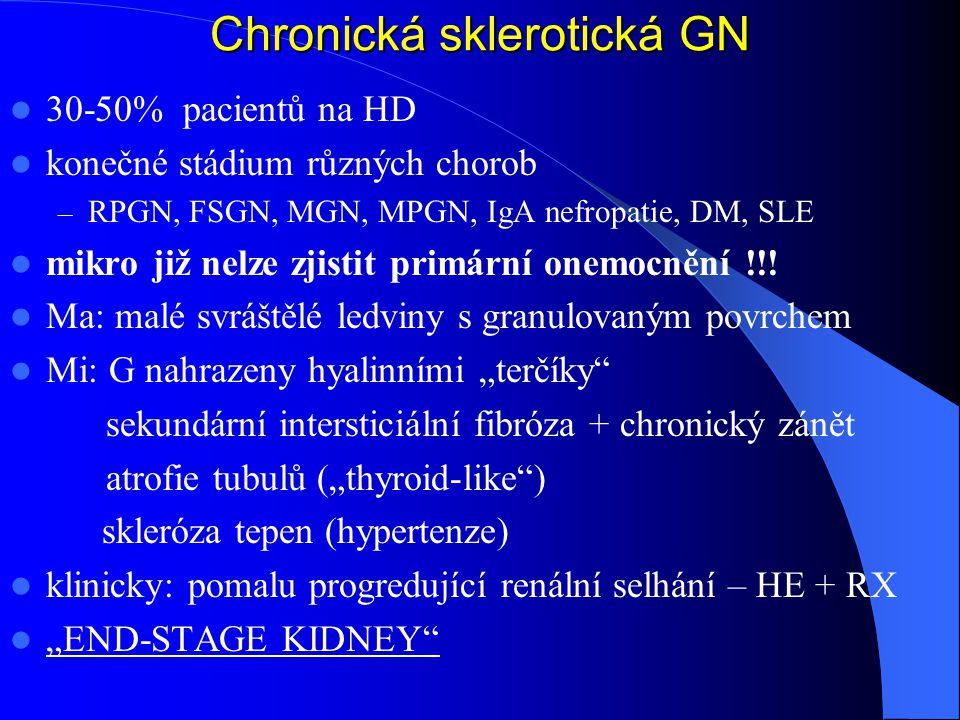 Chronická sklerotická GN 30-50% pacientů na HD konečné stádium různých chorob – RPGN, FSGN, MGN, MPGN, IgA nefropatie, DM, SLE mikro již nelze zjistit primární onemocnění !!.