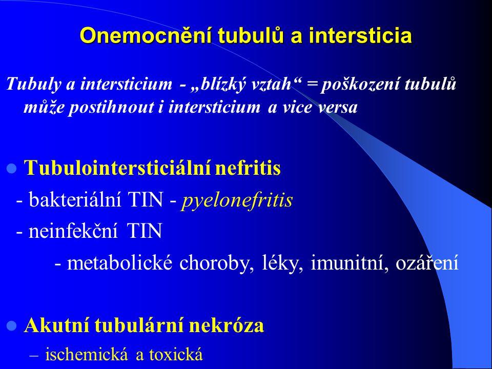 """Onemocnění tubulů a intersticia Tubuly a intersticium - """"blízký vztah = poškození tubulů může postihnout i intersticium a vice versa Tubulointersticiální nefritis - bakteriální TIN - pyelonefritis - neinfekční TIN - metabolické choroby, léky, imunitní, ozáření Akutní tubulární nekróza – ischemická a toxická"""