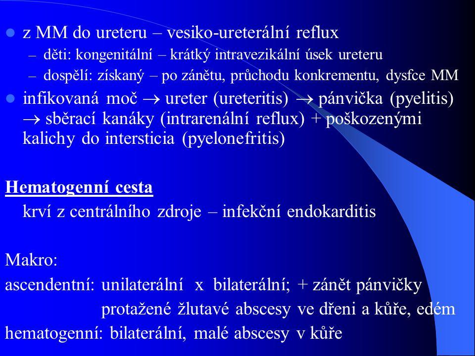 z MM do ureteru – vesiko-ureterální reflux – děti: kongenitální – krátký intravezikální úsek ureteru – dospělí: získaný – po zánětu, průchodu konkrementu, dysfce MM infikovaná moč  ureter (ureteritis)  pánvička (pyelitis)  sběrací kanáky (intrarenální reflux) + poškozenými kalichy do intersticia (pyelonefritis) Hematogenní cesta krví z centrálního zdroje – infekční endokarditis Makro: ascendentní: unilaterální x bilaterální; + zánět pánvičky protažené žlutavé abscesy ve dřeni a kůře, edém hematogenní: bilaterální, malé abscesy v kůře