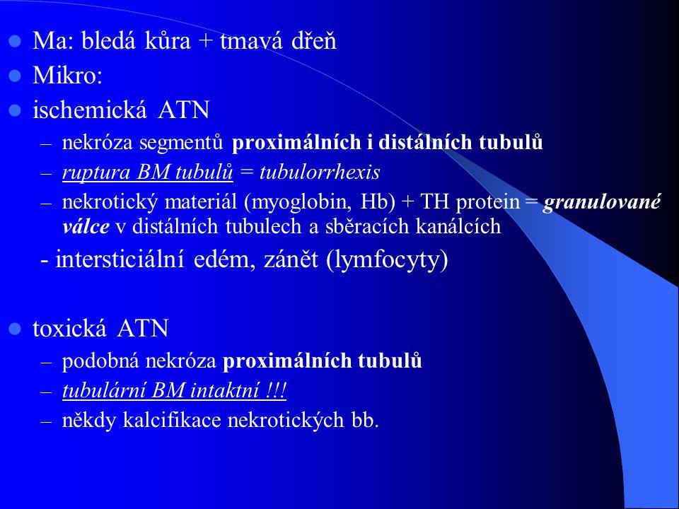 Ma: bledá kůra + tmavá dřeň Mikro: ischemická ATN – nekróza segmentů proximálních i distálních tubulů – ruptura BM tubulů = tubulorrhexis – nekrotický materiál (myoglobin, Hb) + TH protein = granulované válce v distálních tubulech a sběracích kanálcích - intersticiální edém, zánět (lymfocyty) toxická ATN – podobná nekróza proximálních tubulů – tubulární BM intaktní !!.
