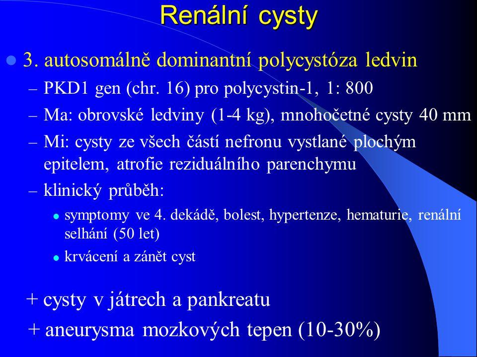 Renální cysty 3.autosomálně dominantní polycystóza ledvin – PKD1 gen (chr.