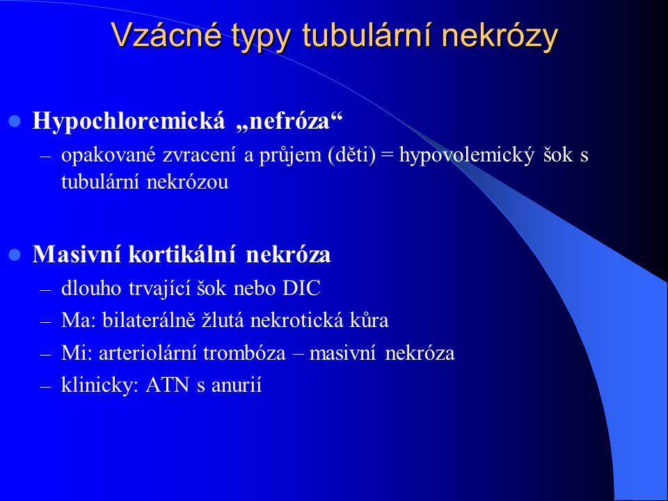 """Vzácné typy tubulární nekrózy Hypochloremická """"nefróza – opakované zvracení a průjem (děti) = hypovolemický šok s tubulární nekrózou Masivní kortikální nekróza – dlouho trvající šok nebo DIC – Ma: bilaterálně žlutá nekrotická kůra – Mi: arteriolární trombóza – masivní nekróza – klinicky: ATN s anurií"""