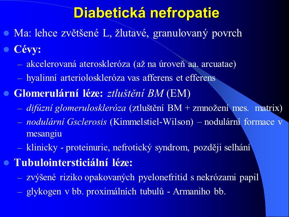 Diabetická nefropatie Diabetická nefropatie Ma: lehce zvětšené L, žlutavé, granulovaný povrch Cévy: – akcelerovaná ateroskleróza (až na úroveň aa.