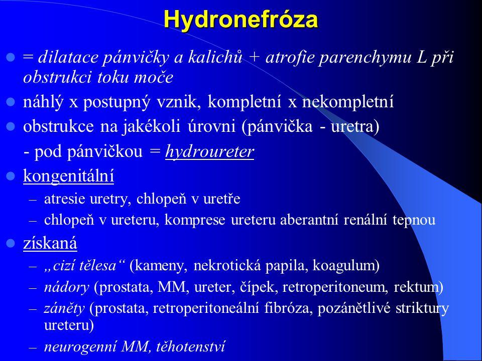 """Hydronefróza = dilatace pánvičky a kalichů + atrofie parenchymu L při obstrukci toku moče náhlý x postupný vznik, kompletní x nekompletní obstrukce na jakékoli úrovni (pánvička - uretra) - pod pánvičkou = hydroureter kongenitální – atresie uretry, chlopeň v uretře – chlopeň v ureteru, komprese ureteru aberantní renální tepnou získaná – """"cizí tělesa (kameny, nekrotická papila, koagulum) – nádory (prostata, MM, ureter, čípek, retroperitoneum, rektum) – záněty (prostata, retroperitoneální fibróza, pozánětlivé striktury ureteru) – neurogenní MM, těhotenství"""