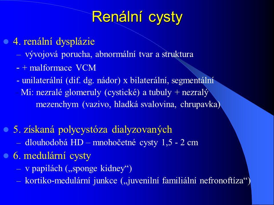 Renální cysty 4.