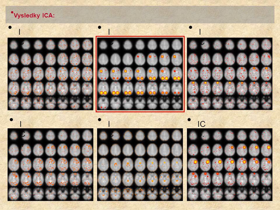 Vysledky ICA: I C 4. I C 2. I C 1. IC 6. I C 5. I C 3.