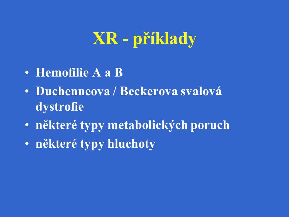XR - příklady Hemofilie A a B Duchenneova / Beckerova svalová dystrofie některé typy metabolických poruch některé typy hluchoty