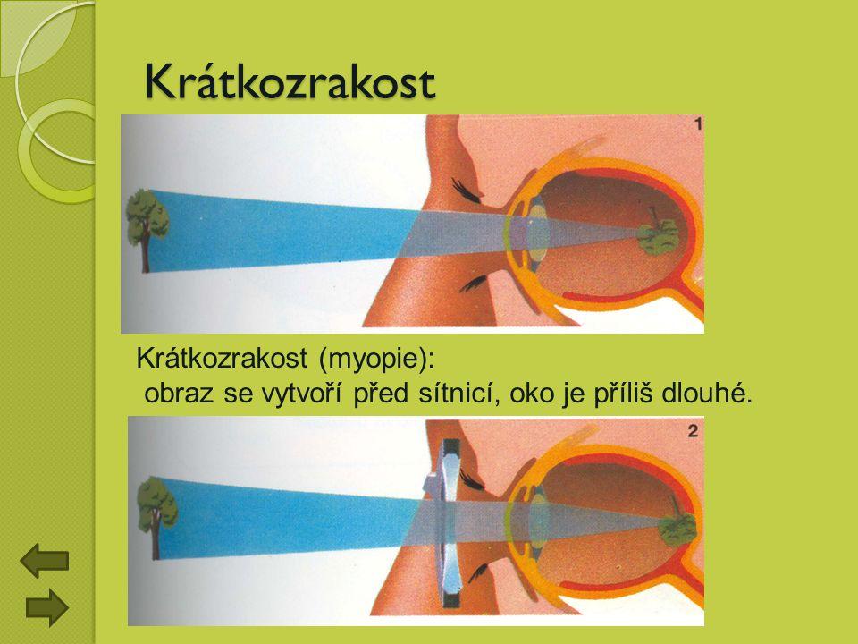 Krátkozrakost Krátkozrakost (myopie): obraz se vytvoří před sítnicí, oko je příliš dlouhé.