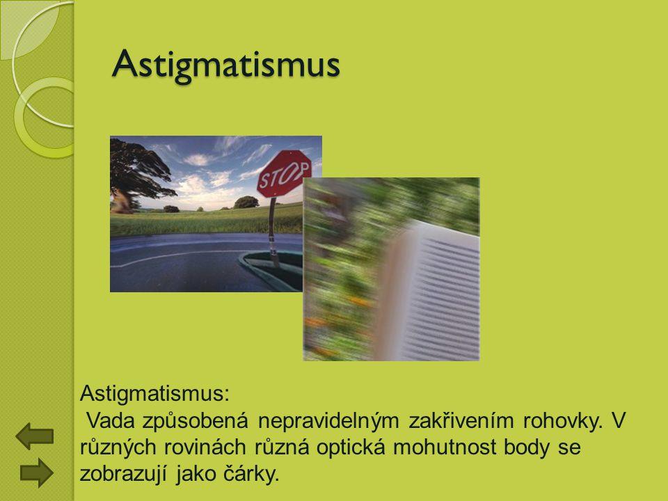 Astigmatismus Astigmatismus: Vada způsobená nepravidelným zakřivením rohovky. V různých rovinách různá optická mohutnost body se zobrazují jako čárky.