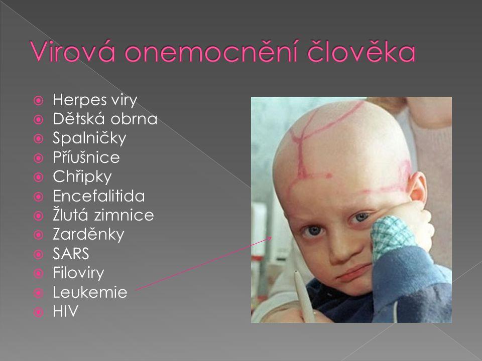  Herpes viry  Dětská obrna  Spalničky  Příušnice  Chřipky  Encefalitida  Žlutá zimnice  Zarděnky  SARS  Filoviry  Leukemie  HIV