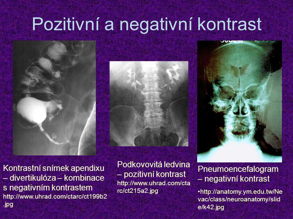 Pozitivní a negativní kontrast Kontrastní snímek apendixu – divertikulóza – kombinace s negativním kontrastem http://www.uhrad.com/ctarc/ct199b2.jpg P