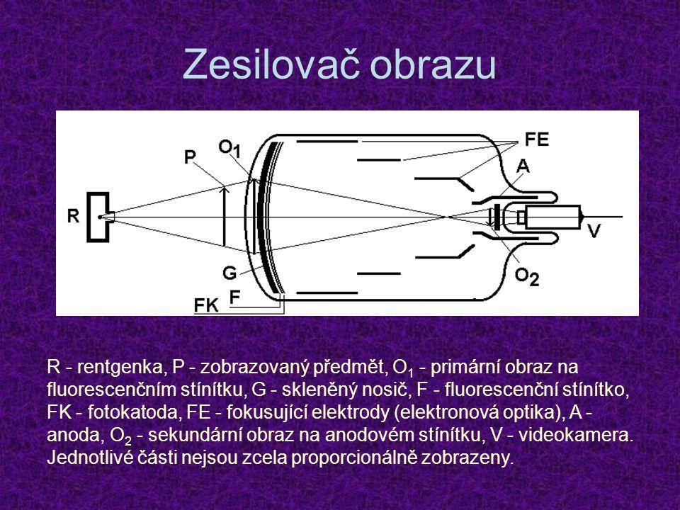 Zesilovač obrazu R - rentgenka, P - zobrazovaný předmět, O 1 - primární obraz na fluorescenčním stínítku, G - skleněný nosič, F - fluorescenční stínít