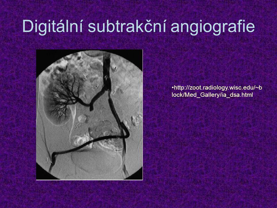 Digitální subtrakční angiografie http://zoot.radiology.wisc.edu/~b lock/Med_Gallery/ia_dsa.html