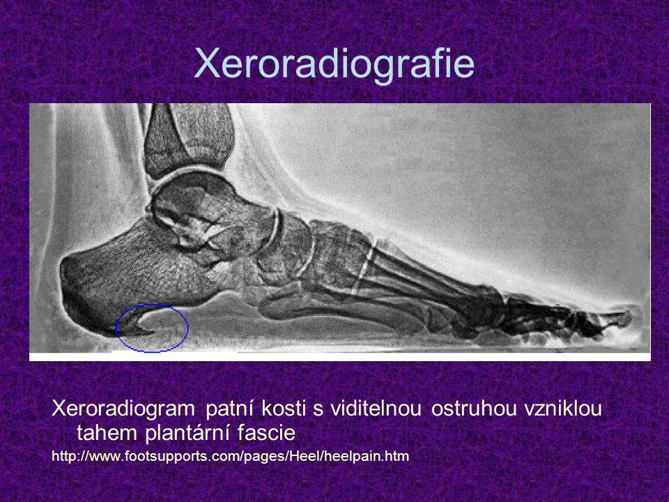 Xeroradiografie Xeroradiogram patní kosti s viditelnou ostruhou vzniklou tahem plantární fascie http://www.footsupports.com/pages/Heel/heelpain.htm