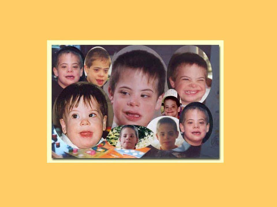 Downův syndrom způsoben trisomií 21.