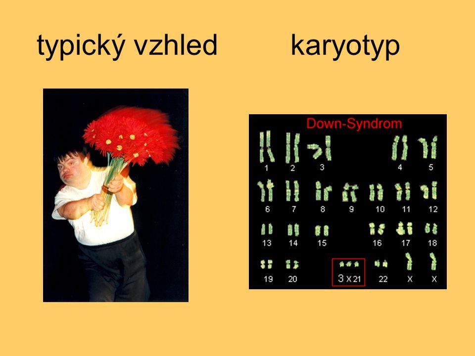 typický vzhled karyotyp