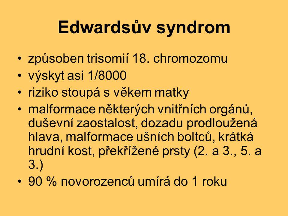 Edwardsův syndrom způsoben trisomií 18. chromozomu výskyt asi 1/8000 riziko stoupá s věkem matky malformace některých vnitřních orgánů, duševní zaosta