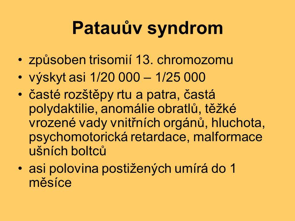 Patauův syndrom způsoben trisomií 13. chromozomu výskyt asi 1/20 000 – 1/25 000 časté rozštěpy rtu a patra, častá polydaktilie, anomálie obratlů, těžk