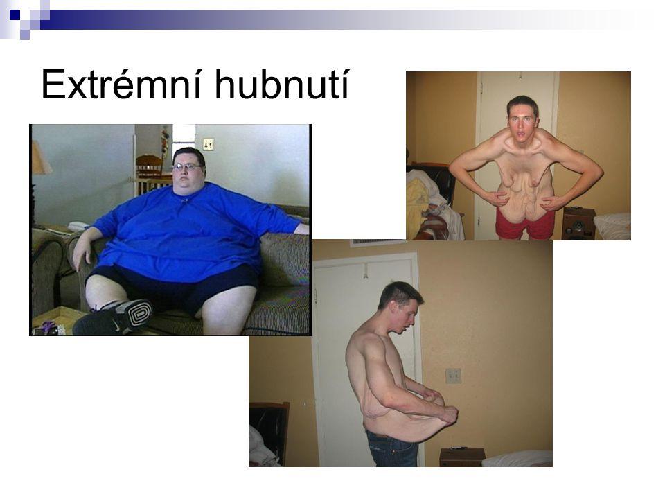 Extrémní hubnutí