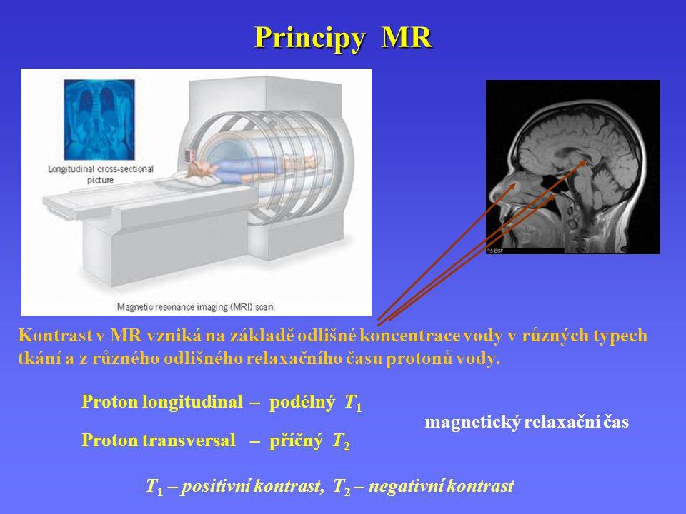 Kontrast v MR vzniká na základě odlišné koncentrace vody v různých typech tkání a z různého odlišného relaxačního času protonů vody. Proton longitudin