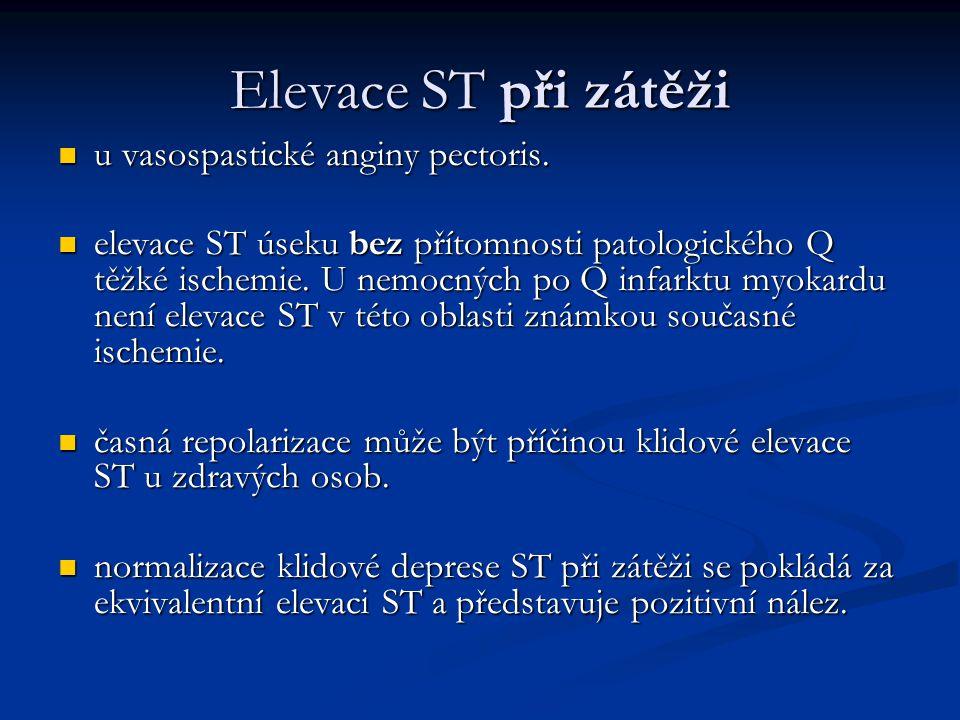 Elevace ST při zátěži u vasospastické anginy pectoris. u vasospastické anginy pectoris. elevace ST úseku bez přítomnosti patologického Q těžké ischemi