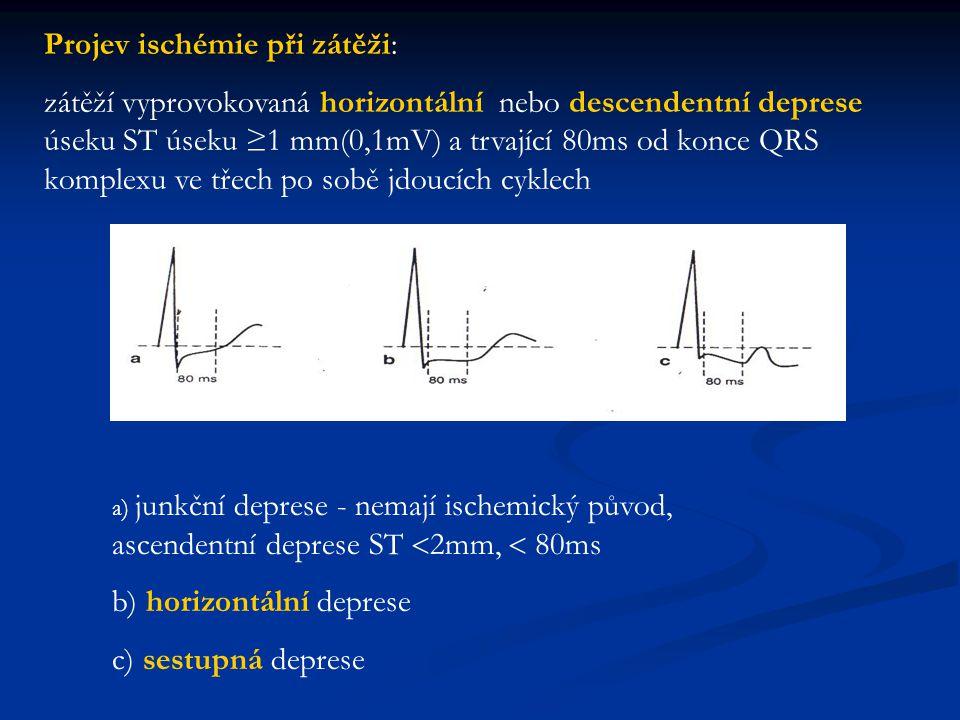 Projev ischémie při zátěži: zátěží vyprovokovaná horizontální nebo descendentní deprese úseku ST úseku ≥1 mm(0,1mV) a trvající 80ms od konce QRS kompl