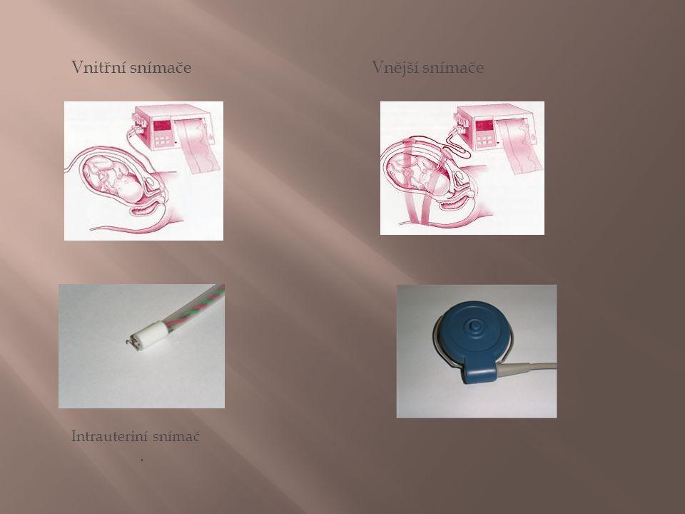 Vnitřní snímače Vnější snímače Intrauteriní snímač.