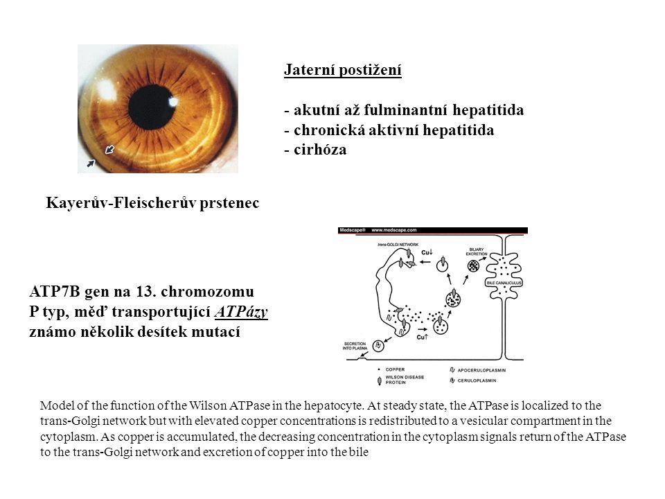 Wilsonova choroba (hepatolentikulární degenerace) AR dědičné onemocnění (1:30 000) s poruchou metabolismu mědi porucha exkrece mědi z jater hromadění