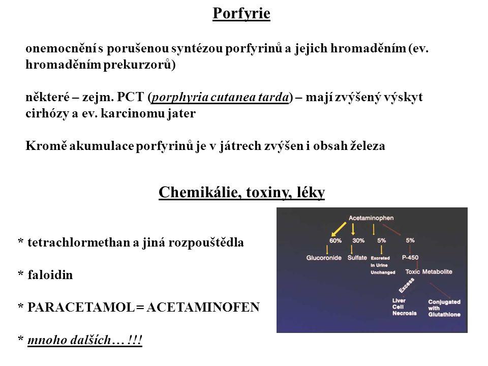 Hemochromatóza větš. AR dědičné onemocnění (až 0,3%ní výskyt, ale s neúplnou penetrancí) nadměrná resorpce železa ve střevě hromadění železa v játrech