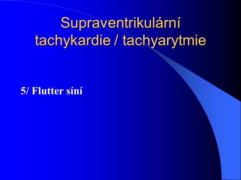 Supraventrikulární tachykardie / tachyarytmie 5/ Flutter síní