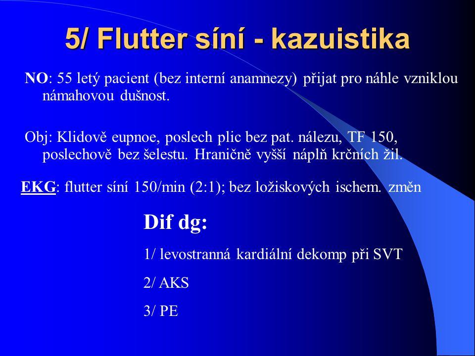 5/ Flutter síní - kazuistika NO: 55 letý pacient (bez interní anamnezy) přijat pro náhle vzniklou námahovou dušnost.