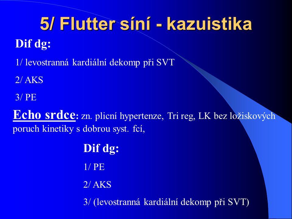 5/ Flutter síní - kazuistika Dif dg: 1/ levostranná kardiální dekomp při SVT 2/ AKS 3/ PE Echo srdce : zn.