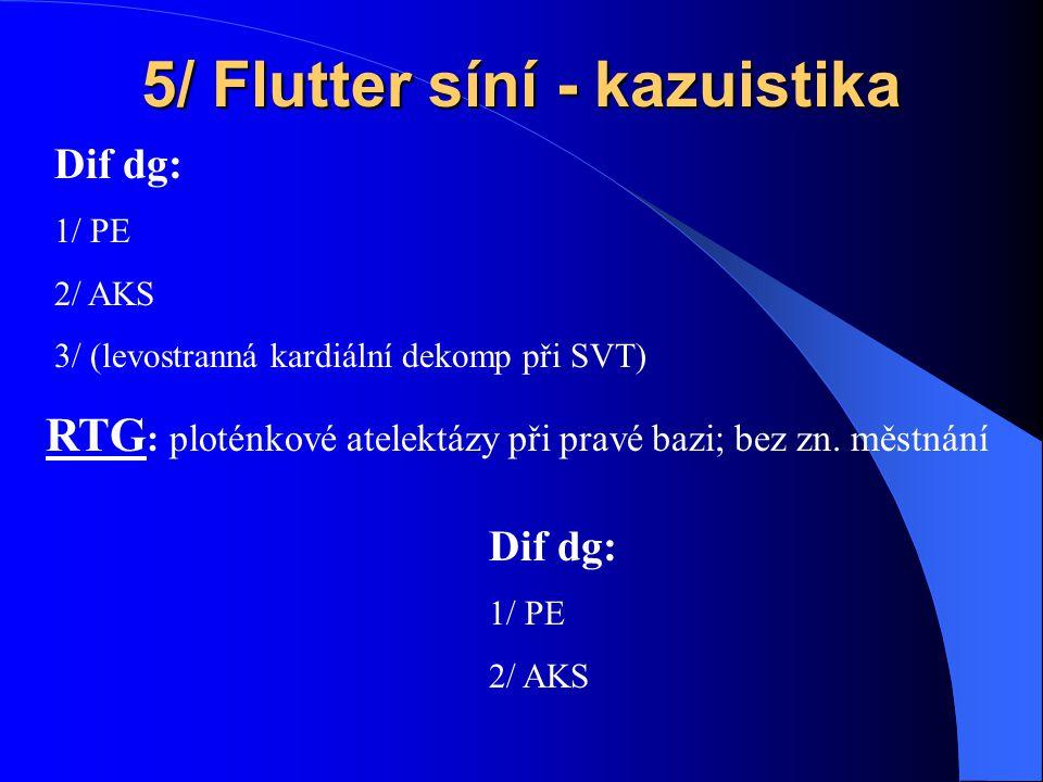 5/ Flutter síní - kazuistika RTG : ploténkové atelektázy při pravé bazi; bez zn.