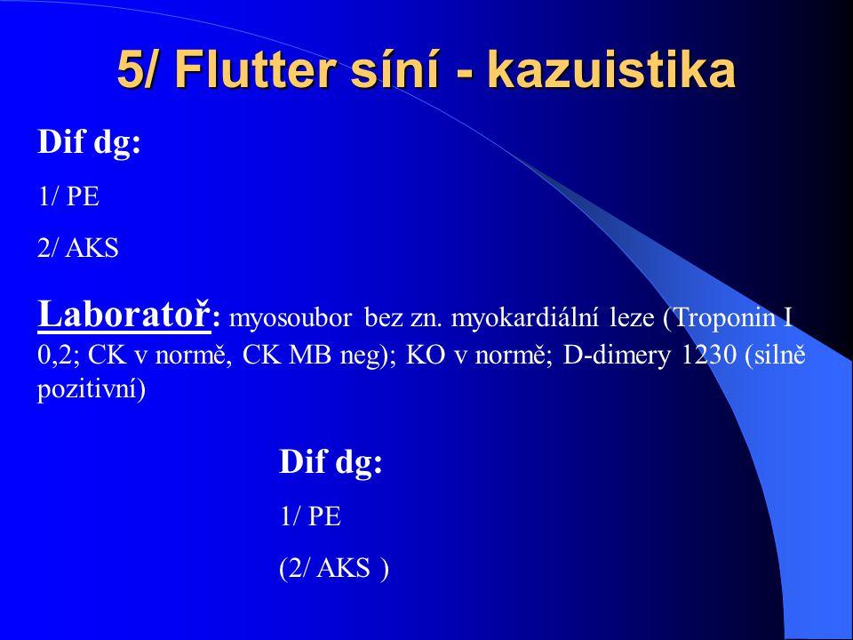 5/ Flutter síní - kazuistika Laboratoř : myosoubor bez zn.