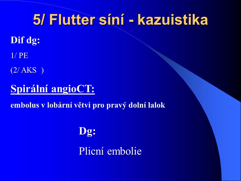 5/ Flutter síní - kazuistika Spirální angioCT: embolus v lobární větvi pro pravý dolní lalok Dif dg: 1/ PE (2/ AKS ) Dg: Plicní embolie