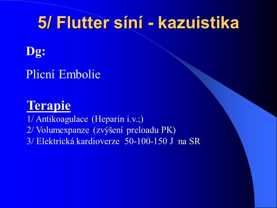 5/ Flutter síní - kazuistika Dg: Plicní Embolie Terapie 1/ Antikoagulace (Heparin i.v.;) 2/ Volumexpanze (zvýšení preloadu PK) 3/ Elektrická kardioverze 50-100-150 J na SR