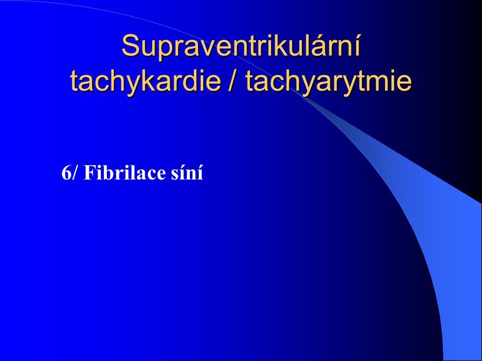 Supraventrikulární tachykardie / tachyarytmie 6/ Fibrilace síní